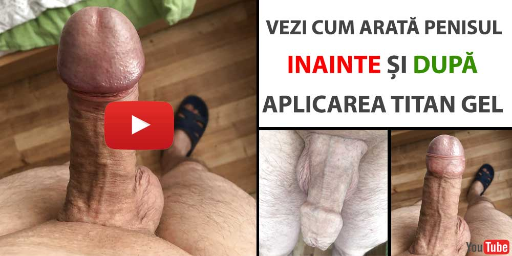 aplicare-titan-gel-video