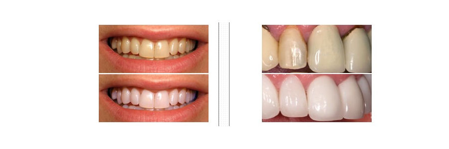 Denta Seal Rezultate