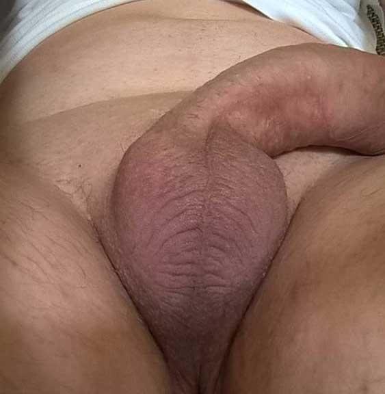 operatie-marirea-penisului