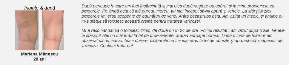 Viatonica Pareri